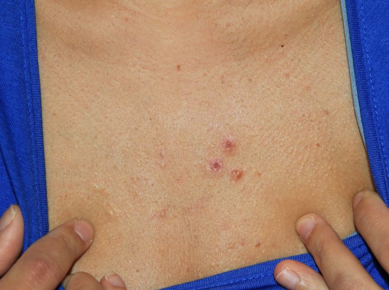 Acne Chest Keloids