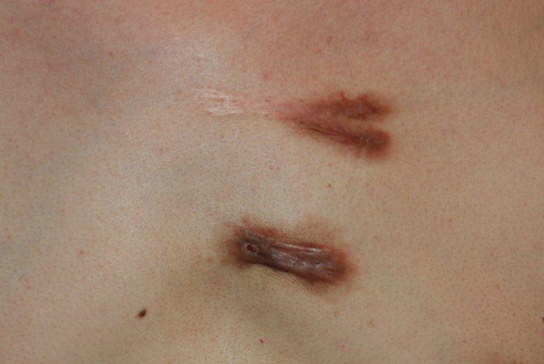 Inflammatory chest keloids