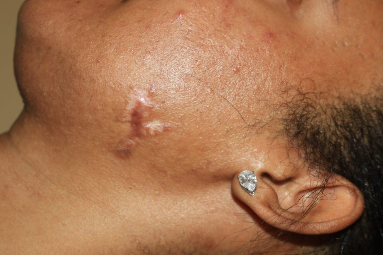 Impact of two courses of treatment
