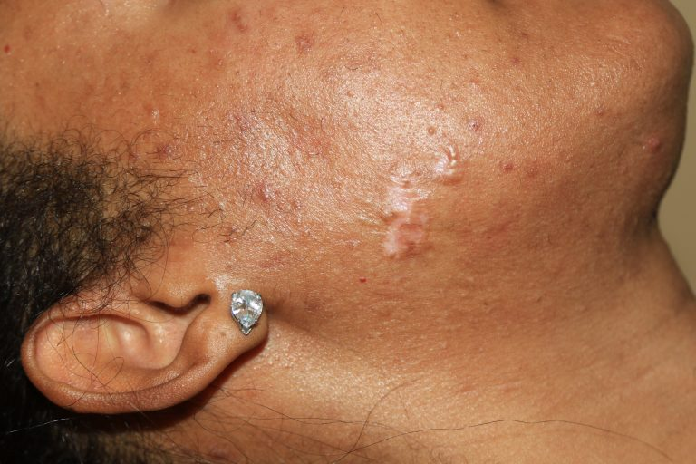 Impact of two treatments